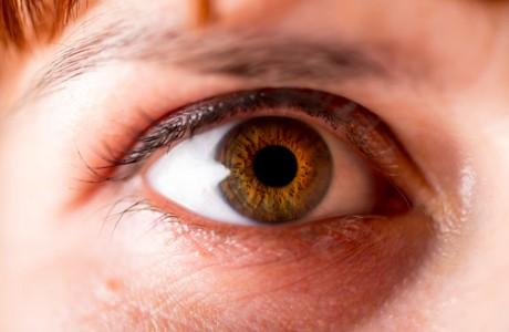 דלקת של עצב הראיה